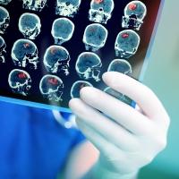 Bouw en implementatie van een mobiele beroerte-behandelingseenheid